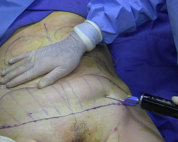 1200px-Fat_removal_using_cannula_during_tumescent_liposuction
